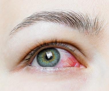 Sposoby na podrażnione oczy