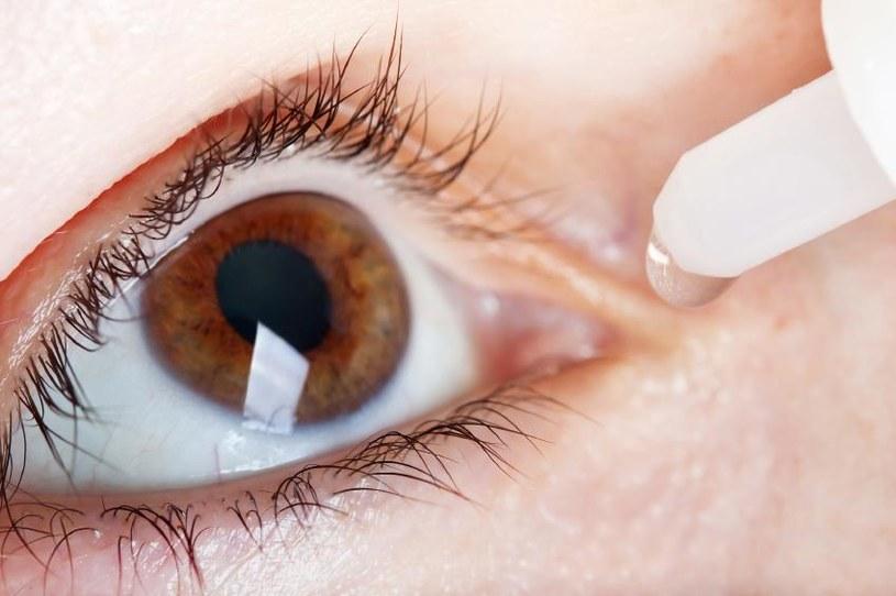 sposoby na swędzenie oczu - 6 /© Photogenica