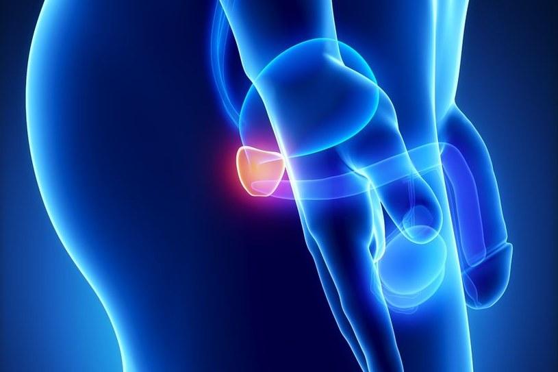 Spożywanie tłuszczów nasyconych zwiększa agresywność raka prostaty /123RF/PICSEL