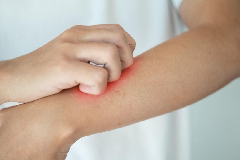 Sprawdź, co poradzić na atopowe zapalenie skóry /123RF/PICSEL