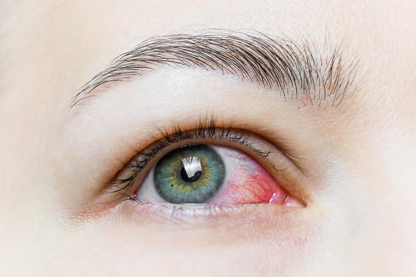 Sprawdź, co robić kiedy masz podrażnione oczy /123RF/PICSEL