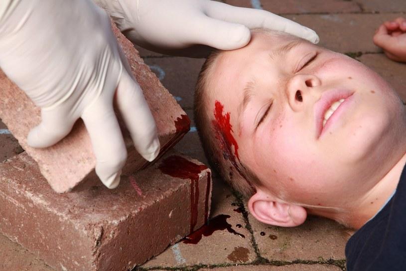 Sprawdź, jak zatamować krwotok /123RF/PICSEL