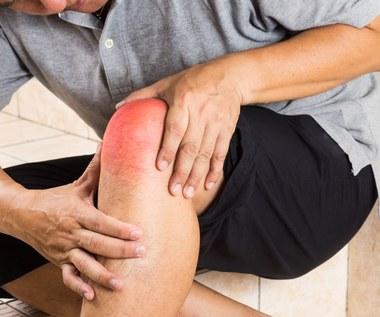 Sprawdzone sposoby na opuchnięte kolana