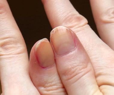 Sprawdzone sposoby na rozdwajające się paznokcie