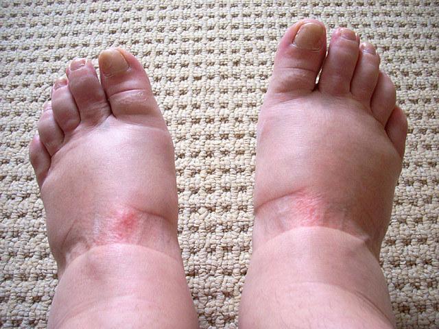 spuchnięte stopy /© Photogenica