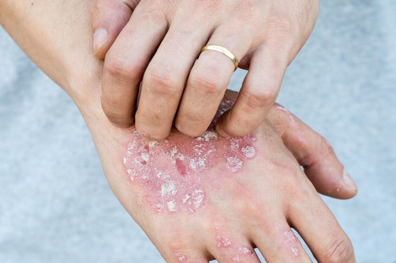 Środki na bazie alkoholu mogą poważnie uszkodzić skórę /123RF/PICSEL