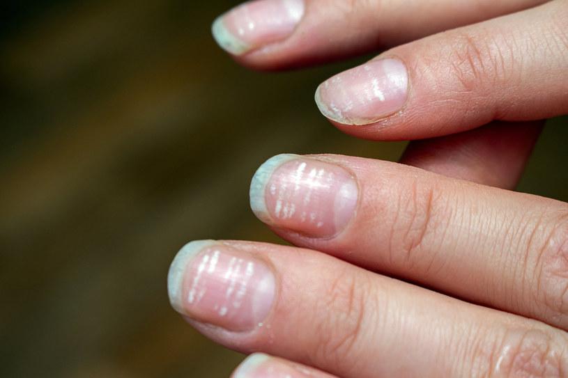 Stan paznokci może alarmować o poważnych schorzeniach /123RF/PICSEL