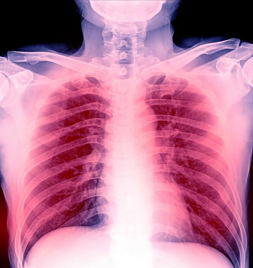 Stan zapalny płuc /©123RF/PICSEL