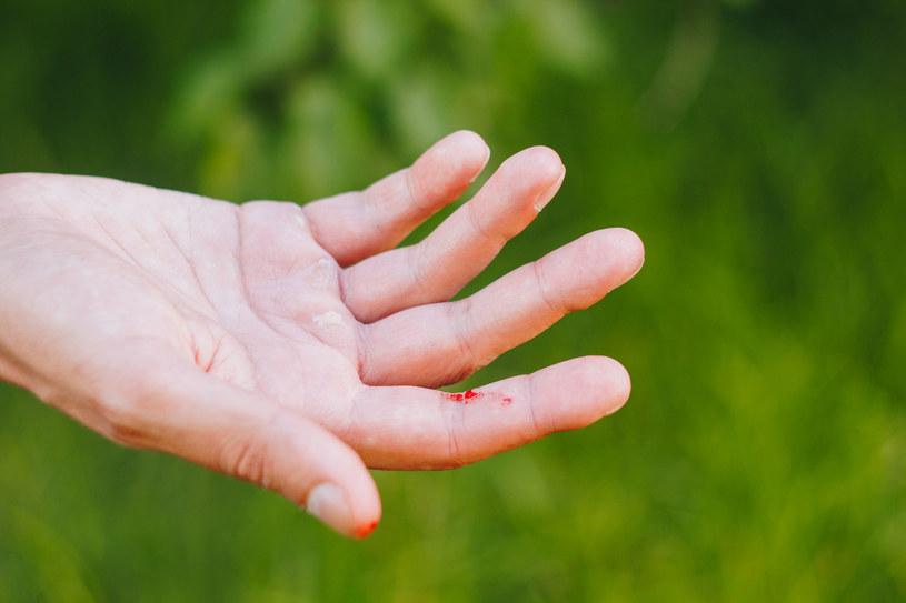 Staraj się pozbyć nawyku przeciągania palcami np. po źdźble trawy. Możesz boleśnie rozciąć naskórek! /123RF/PICSEL