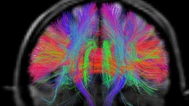 Starzenie mózgu można zahamować /materiały prasowe