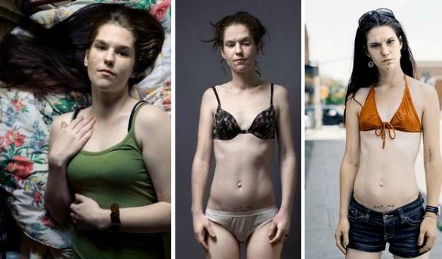 Stephanie na zdjęciach kanadyjskiego fotografa /Tony Fouhse /.