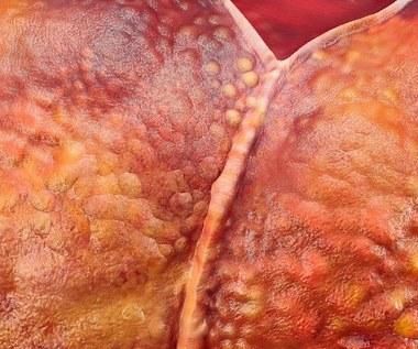 Stłuszczenie wątroby: Objawy, przyczyny, leczenie
