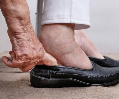 Stopa cukrzycowa: Przyczyny, objawy i leczenie
