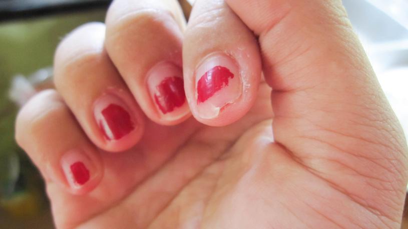 Strzępki manicuru, do tego poobgryzane skórki? Taki widok obrzydzi nie tylko mężczyzn! /123RF/PICSEL
