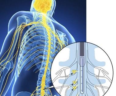 Stworzono implant, który blokuje ból