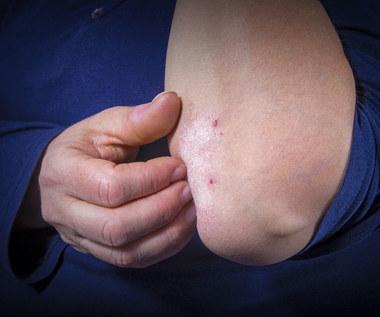 Sucha skóra: Objaw groźnych chorób