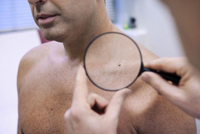 Sucha skóra przyczyny /© Photogenica