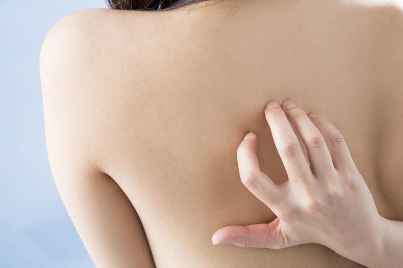 Sucha skóra to problem, z którym zmaga sie wiele Polek /123RF/PICSEL