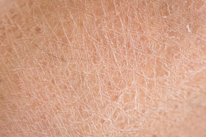 Sucha skóra /©123RF/PICSEL