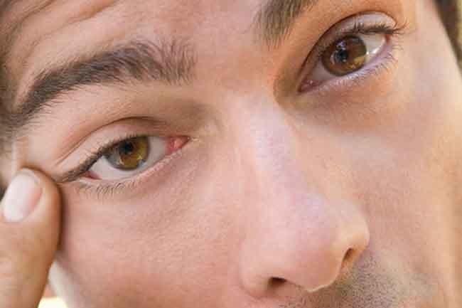 Suche oczy przyczyny /© Photogenica