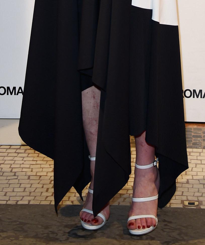 Suknia nie zasłoniła siniaków /Stefania D'Alessandro /Getty Images