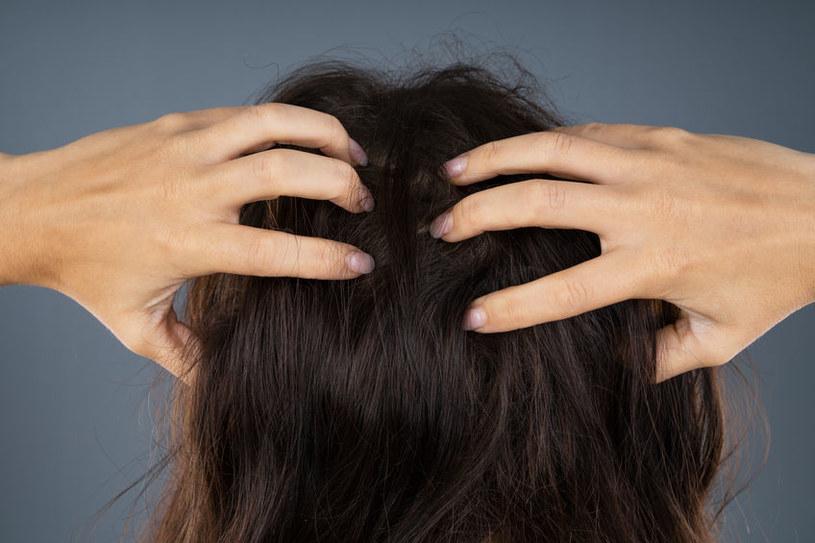 Swędzenie skóry głowy /©123RF/PICSEL