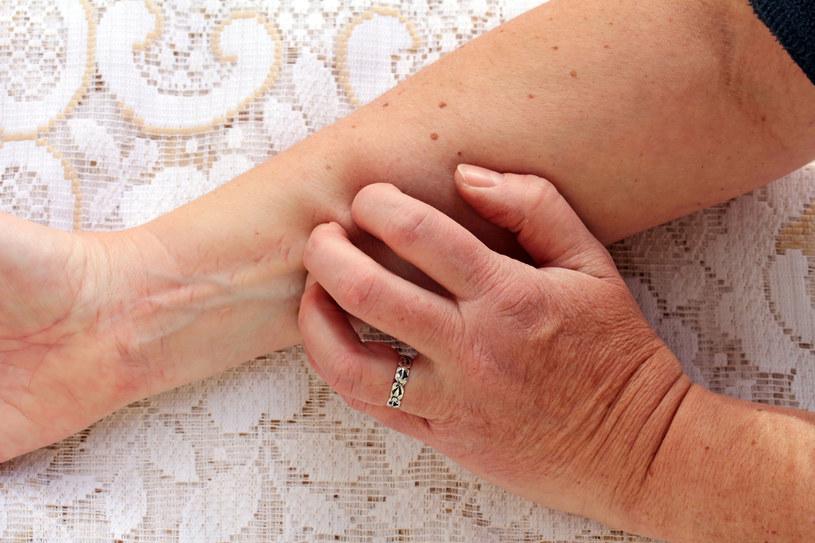 Świąd skóry może przytrafić się każdemu. Jak z nim walczyć? /123RF/PICSEL