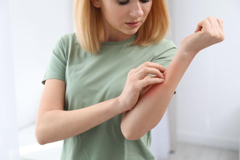 Świąd skóry to jeden z bagatelizowanych objawów czerwienicy /123RF/PICSEL