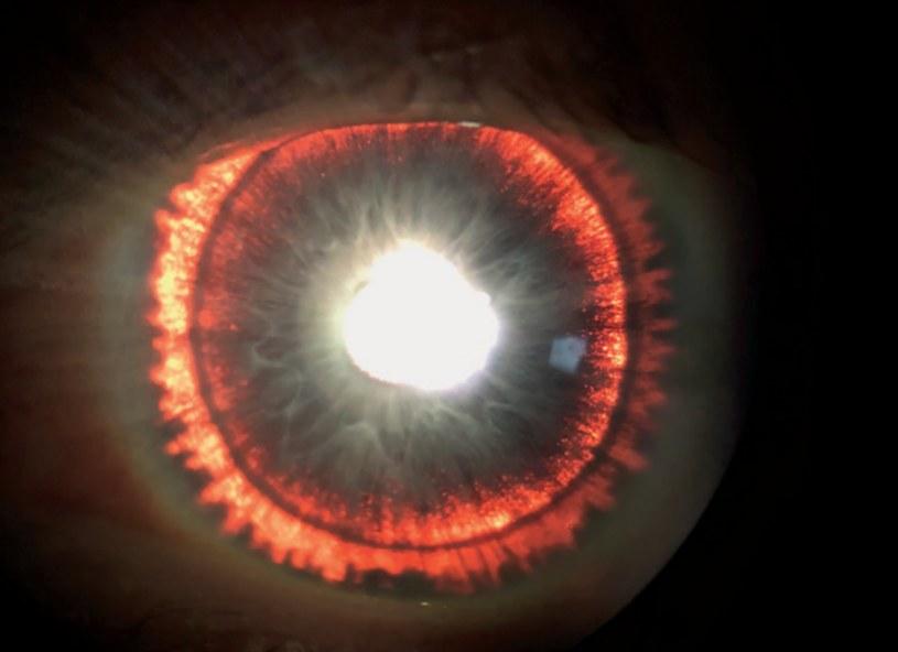 Świecące tęczówki to objaw rzadkiej choroby oczu /materiały prasowe