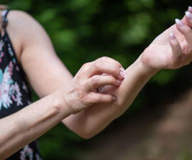 Świerzbiączka: Przyczyny, objawy i leczenie