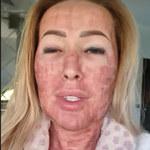 Sylwia Peretti pokazuje poparzoną twarz! Drastyczne zdjęcia