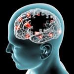 Syrop na kaszel idealnym lekiem na chorobę Parkinsona?