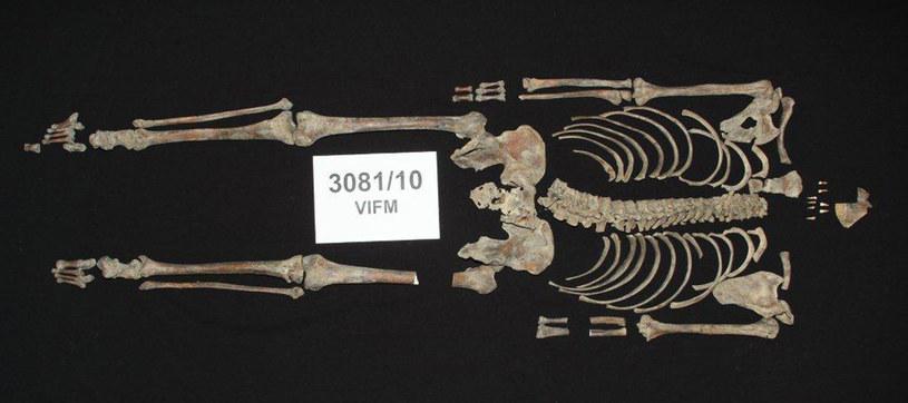 Szczątki wydobyte po ekshumacji. Czaszki do dziś nie odnaleziono... /AFP
