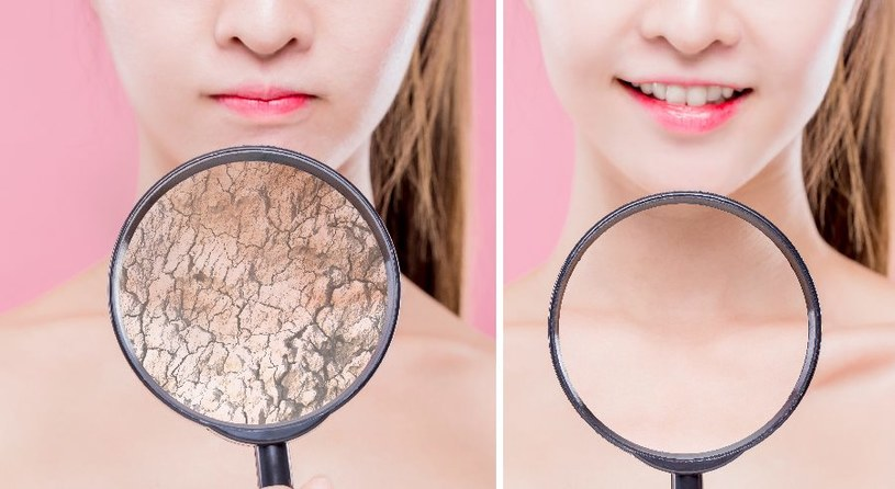 Szczególnej pielęgnacji wymaga sucha skóra /123RF/PICSEL