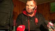 Szef ukraińskiego MSZ: Opozycjonista Bułatow nie był torturowany