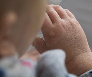 Szkarlatyna - choroba zakaźna wieku dziecięcego. Objawia się nie tylko wysypką