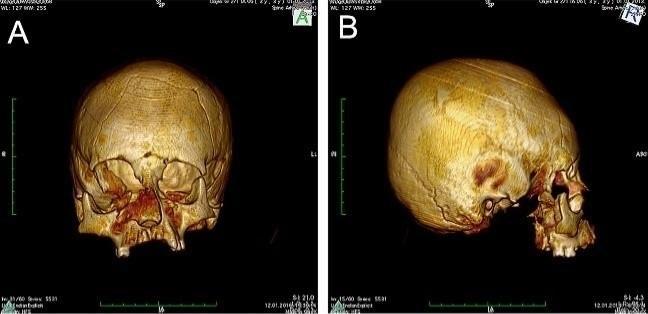 Sztuczna deformacja czaszek była w przeszłości czymś powszechnym /materiały prasowe