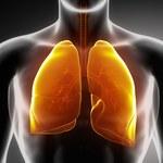 Sztuczna inteligencja wykryje raka płuc
