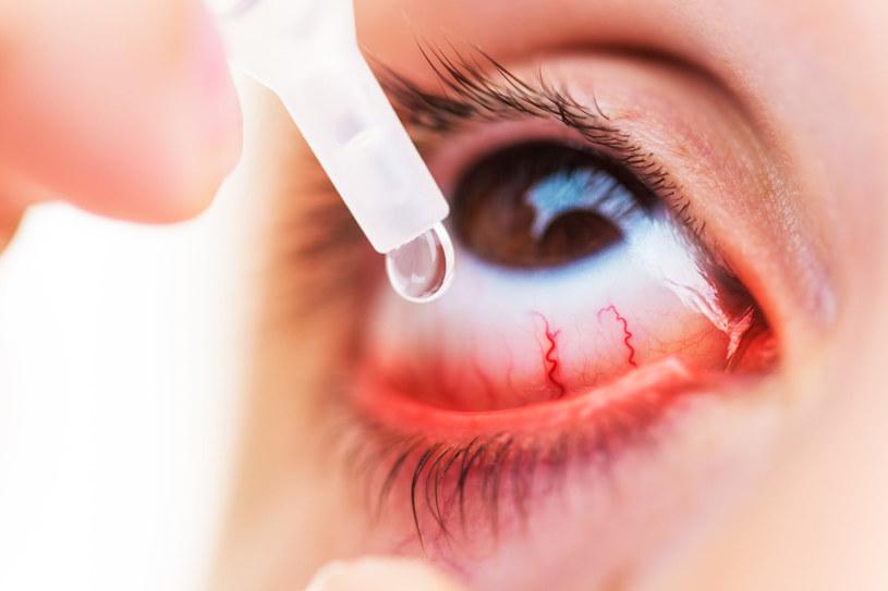 Sztuczne łzy to prosty sposób na nawilżenie suchego oka /123RF/PICSEL