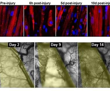 Sztuczne mięśnie, które same się regenerują