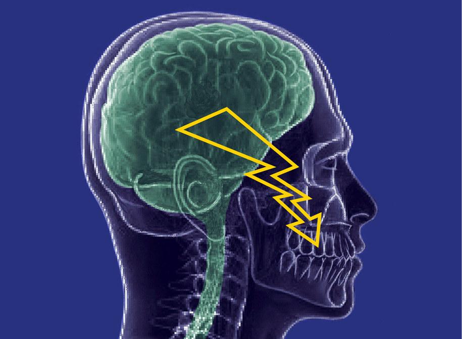 Szwajcarscy naukowcy testują substancję, która może pomóc cierpiacym na neuralgię nerwu trójdzielnego /Center of Dental Medicine; UZH /materiały prasowe