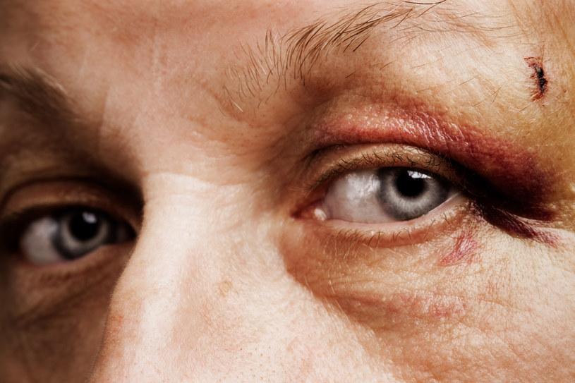 Szybsze leczenie siniaków /© Photogenica