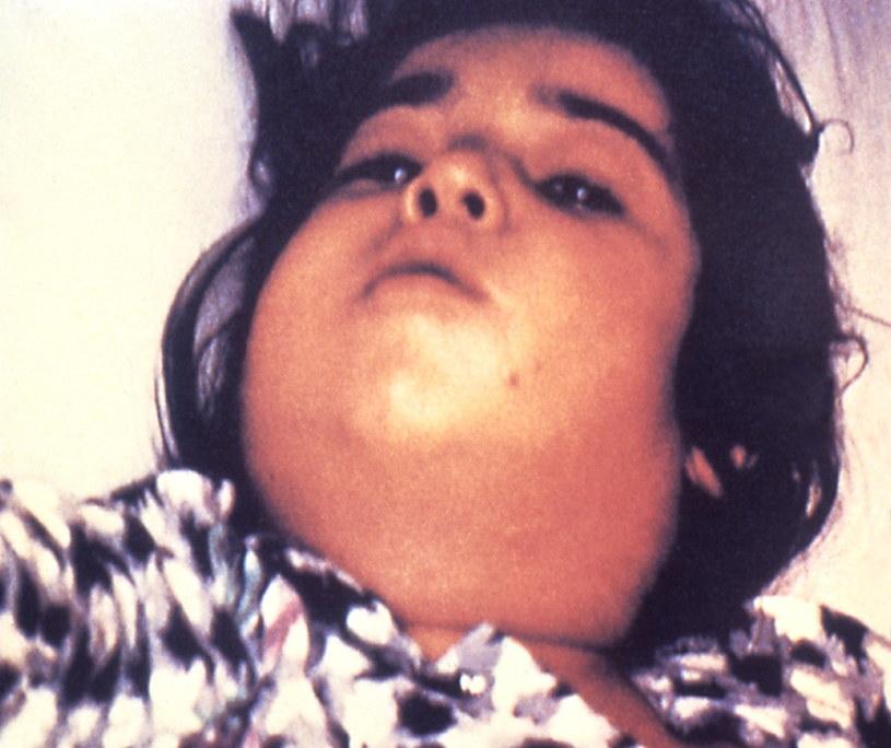 """""""Szyja Nerona"""" - obrzęk szyi będący następstwem błonicy. Fot. CDC /Wikipedia"""