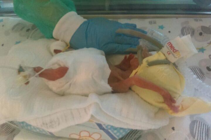 Szymek urodził się w 25. tygodniu ciąży. /Samodzielny Publiczny Szpital Kliniczny Nr 2 PUM w Szczecinie /Materiały prasowe