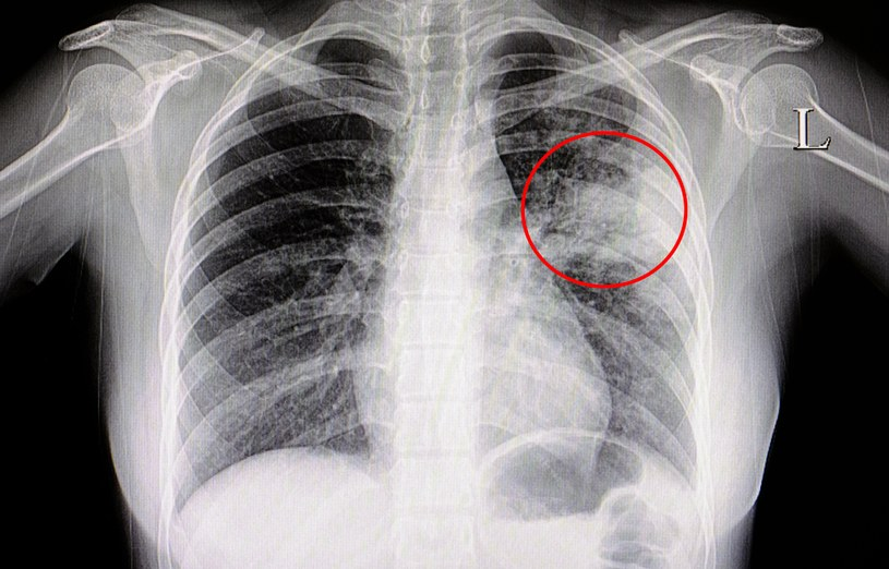 Ta zmiana świadczy o zapaleniu płuc. To niezwykle groźna choroba, nie bagatelizuj jej /123RF/PICSEL