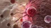 Tajemnica kości. Czy praludzie chorowali na raka?