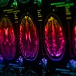 Tajemnicza choroba neurologiczna w Kanadzie
