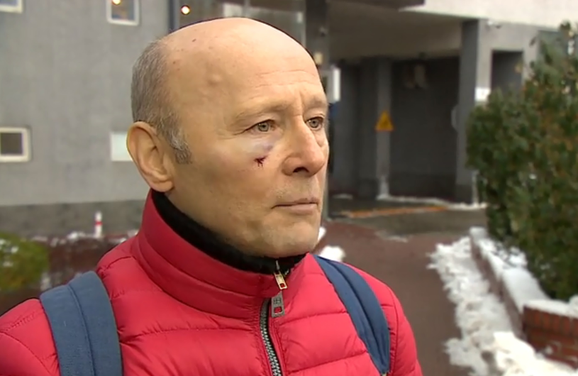 Tak aktor wyglądał tuż po bójce. Udzielił wywiadu dla telewizji Polsat News /Polsat News /materiał zewnętrzny