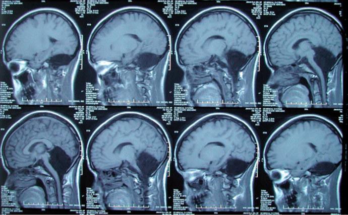 Tak wygląda funkcjonujący mózg człowieka bez móżdżku /materiały prasowe