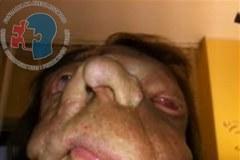 Tak wygląda pacjentka po przeszczepie twarzy [Uwaga, drastyczne zdjęcia!]